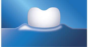 Poprawa zdrowia dziąseł taka jak przy stosowaniu nici dentystycznych — potwierdzone klinicznie